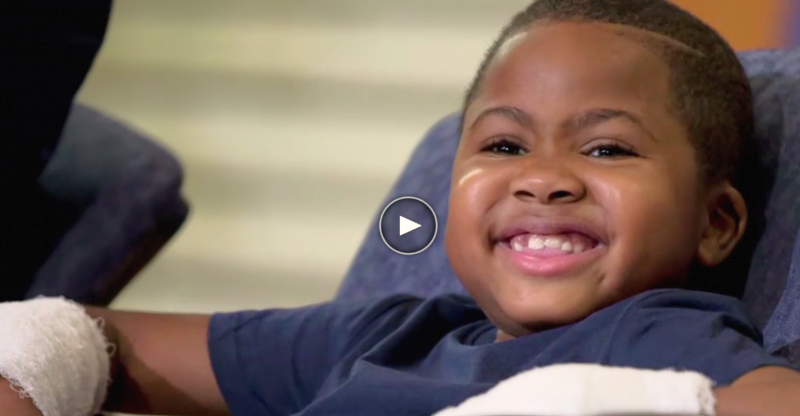 Boy Makes History With Dual Hand Transplant:  First Thing He Wants Is A Dog!